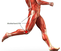 Iliotibial Band Syndrome in Athletes